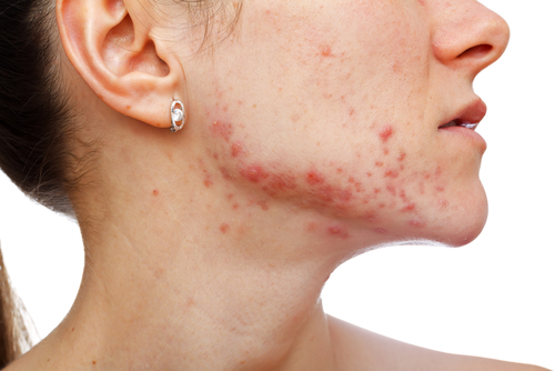 Why Your Acne Won't Go Away And What To Do For Fast Relief