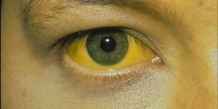 Jaundice Eye