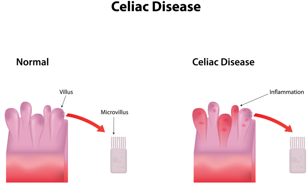 Illustration of Celiac Disease Food Sensitivity