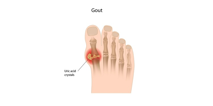 Illustration of a gout on feet