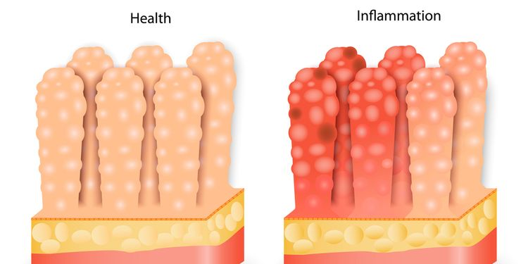 Image illustration of stomach villi, healthy and inflammed