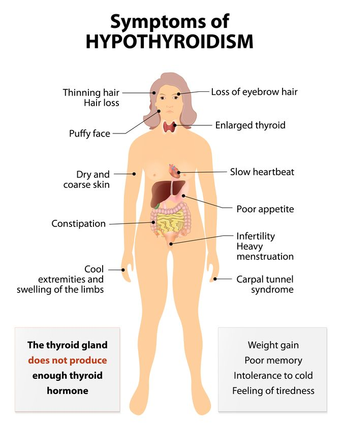 Illustration of Hypothyroidism Symptoms on full body model