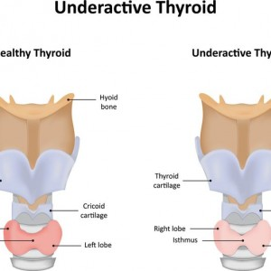 Underactive Thyroid Gland