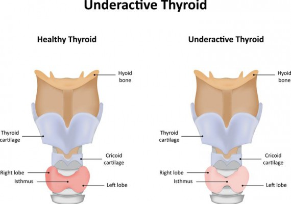 hypothyroidism-underactive-thyroid-gland-big