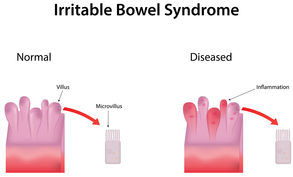 Illsutration of Irritable Bowel Syndrome