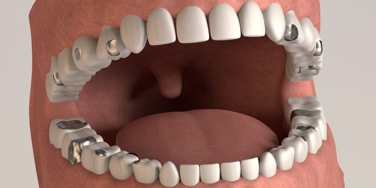 Photo of a 3D model of human teeth