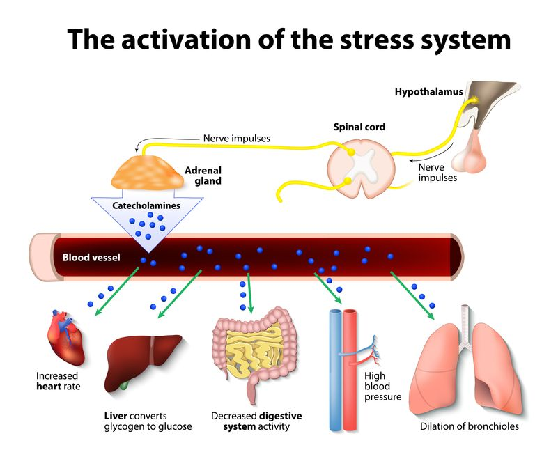 Illustration of stress system activators - Blood Stool Root Cause Stress