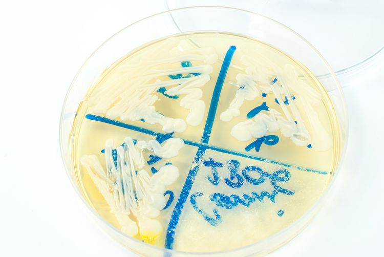 Photo of a candida colony in a Petri Dish - Chronic Candida Infection