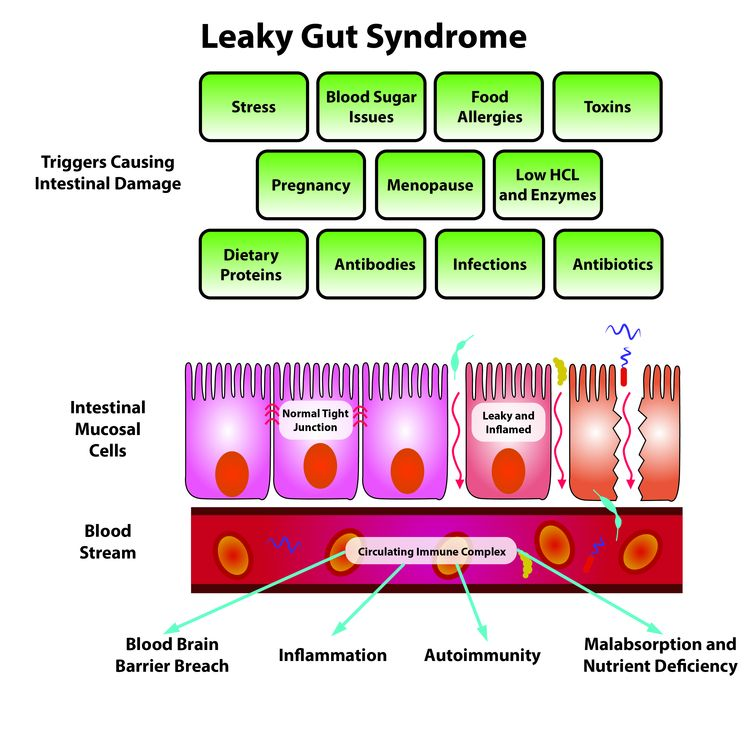 Image diagram of leaky gut syndrome