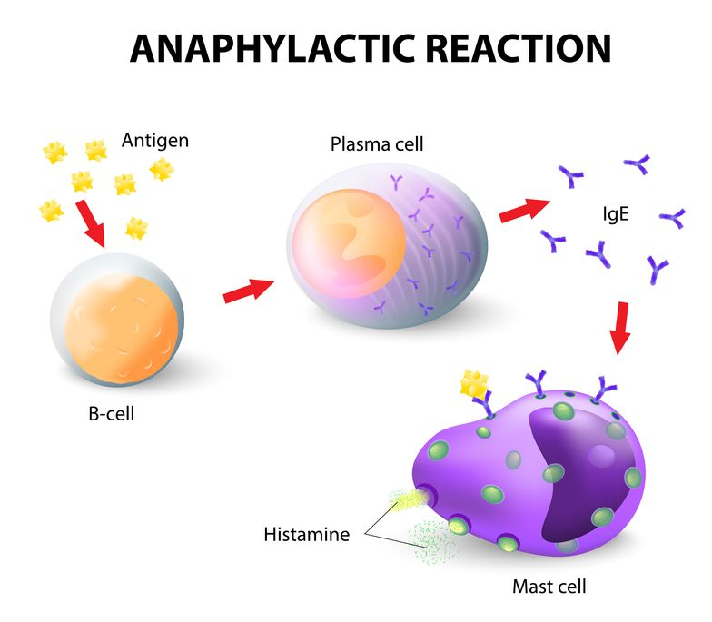 illustration of an Anaphylactic Reaction