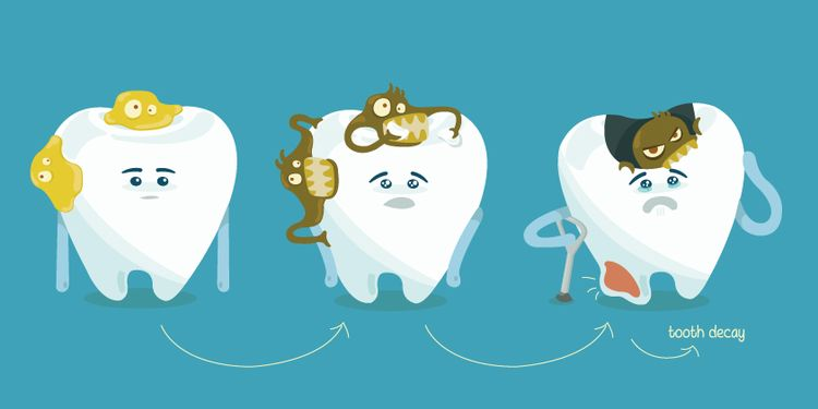 Drawing of tooth decay step by step