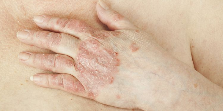 Photo of hand with psoriasis on skin