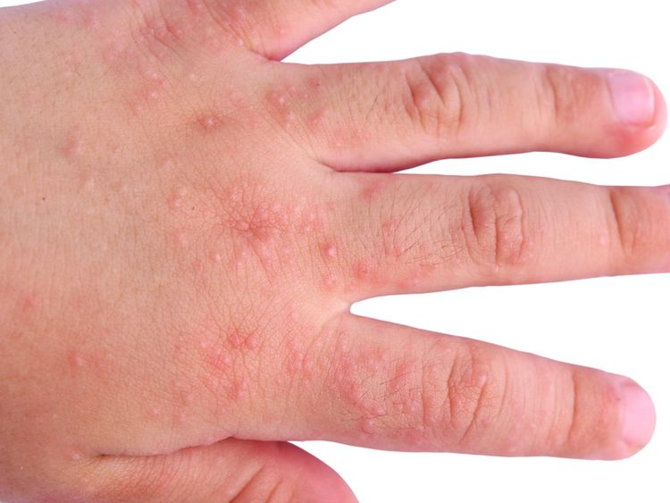 Photo of a hand with Allergic Rash Dermatitis symptoms