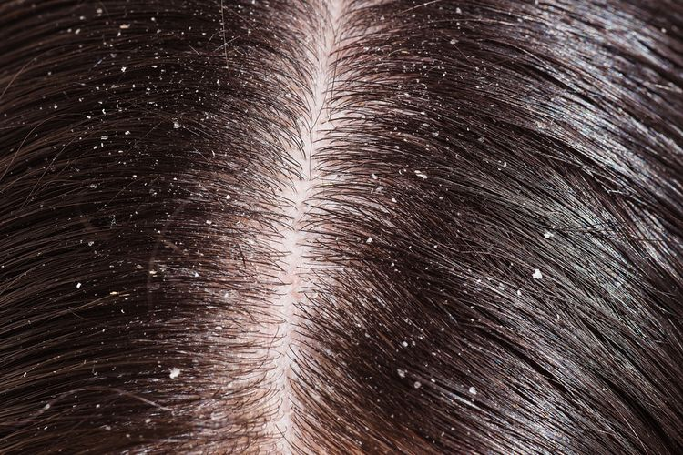 Photo of Dandruff on scalp