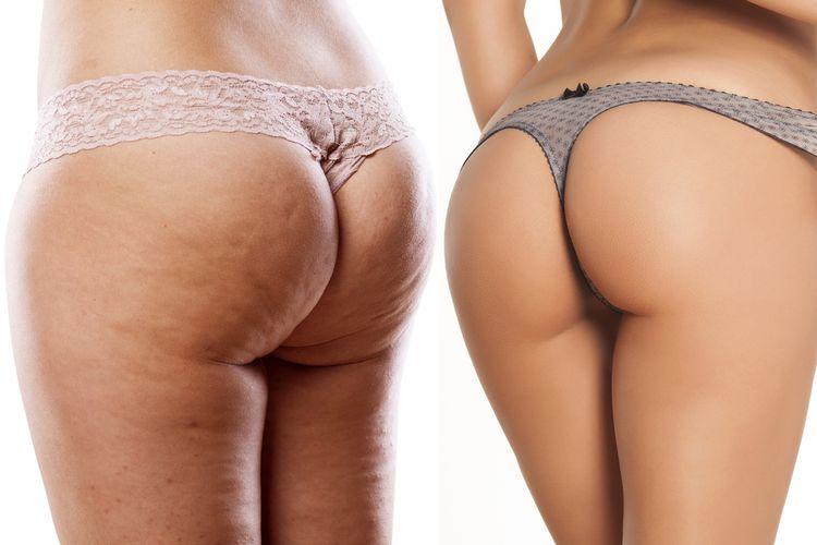 Photo of a Female Buttocks With and Without Cellulite