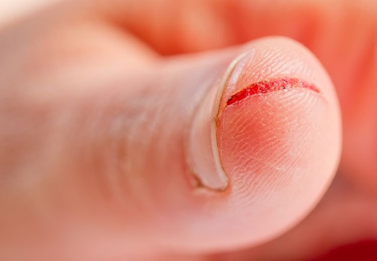 Photo of an Injured Finger With Dirty Open Cut