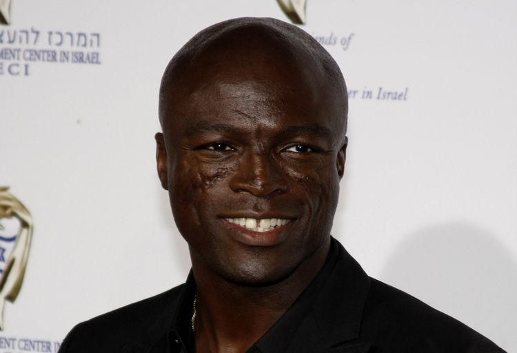 Photo of British singer Seal who suffered from discoid lupus erythematosus