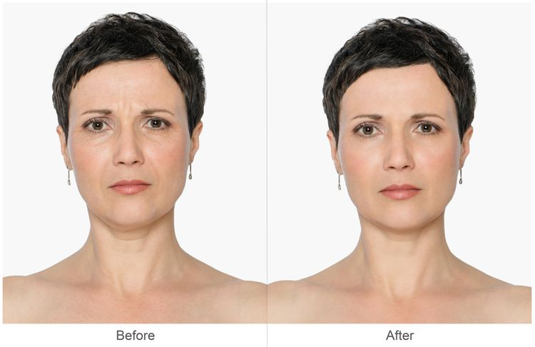 Photo of a woman wih Wrinkles Before and After