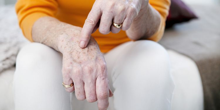Photo of age spots on senior woman hands