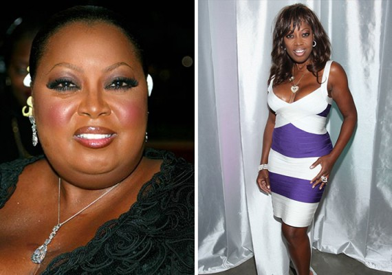 Star Jones Who Had Gastric Bypass Surgery