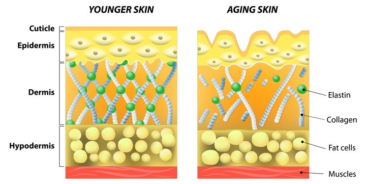 A diagram of younger skin and aging skin showing the decrease in collagen and broken elastin in older skin