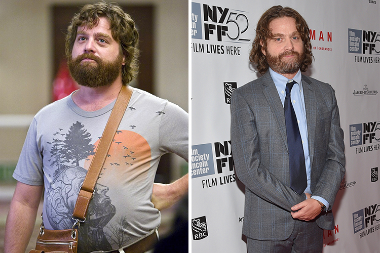 Photo of Zach Galifianakis who lost 60 lbs