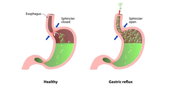 Illustration of gastric reflux