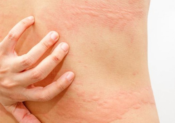 Woman with symptoms of itchy urticaria
