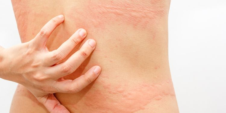 Photo of woman with symptoms of itchy urticaria scratching her back
