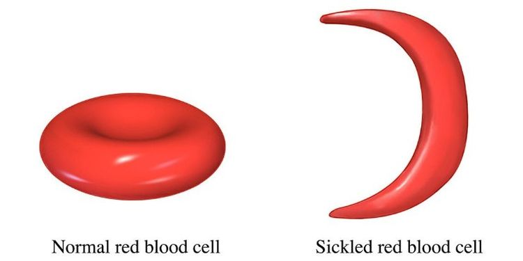 image of Anemia cell