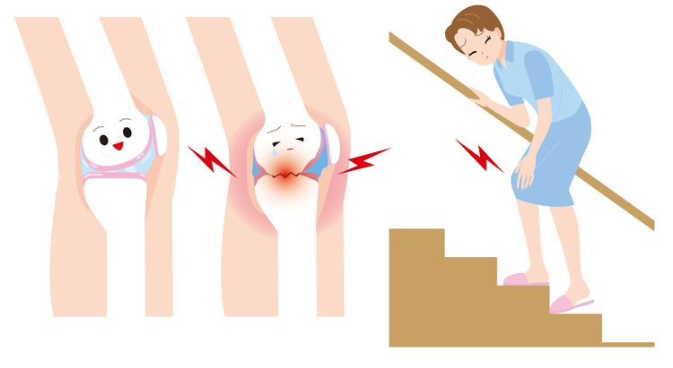Illustration of woman to climb the stairs with pain and cartoonish knee joints