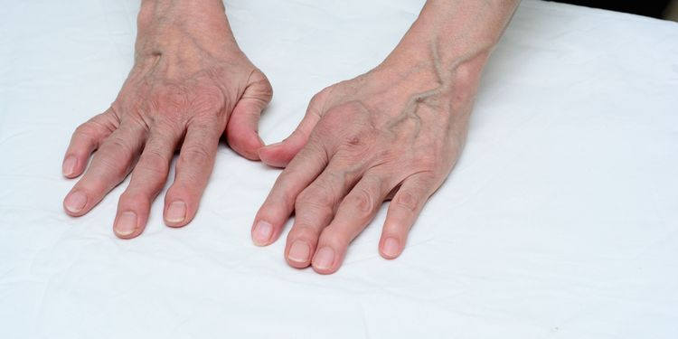 Photo of female hands with deformed finger joints
