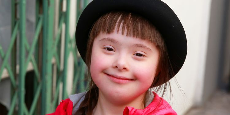 Photo of cute girl with Down Syndrome smiling