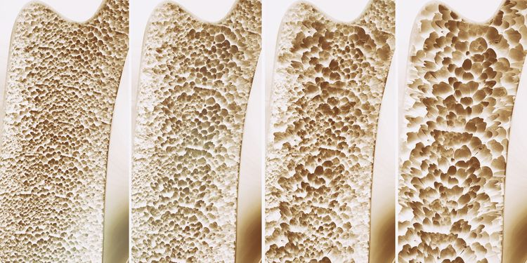 Photo of 4 different stages in bone osteoporosis progression