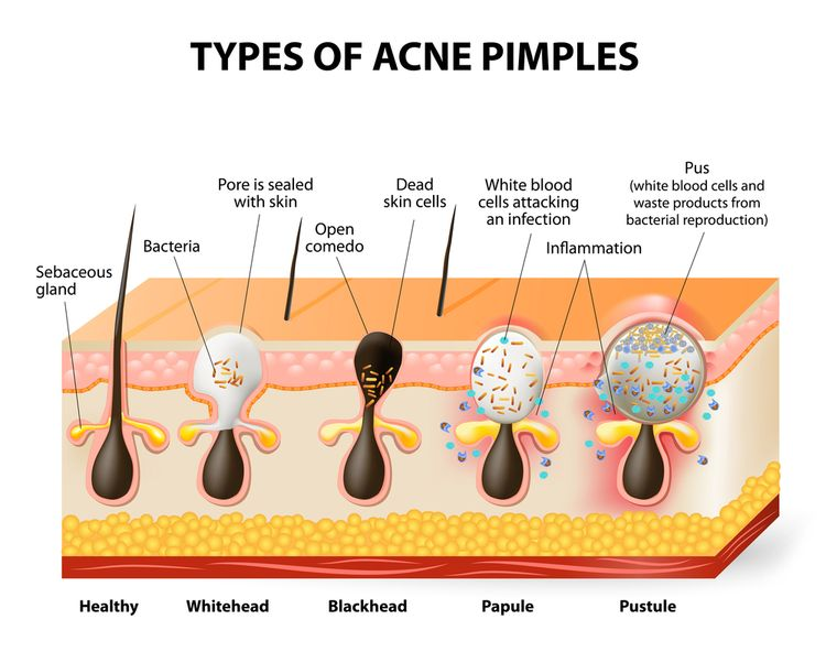 Image depicting types of acne
