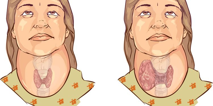Image showing process of thyroid enlargement due to goiter