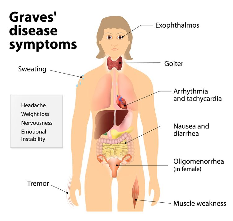 Diagram showing symptoms of Graves' disease