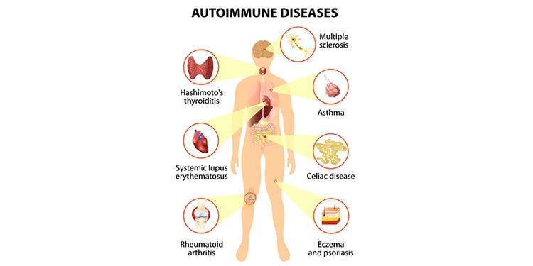 Illustration of effect of autoimmune disease on development of hypothyroidism