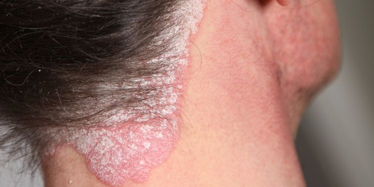 Photo of psoriasis on neck lesion