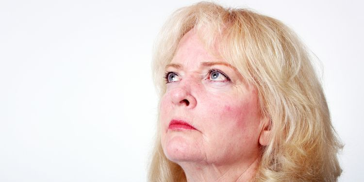 Photo of woman with rosacea