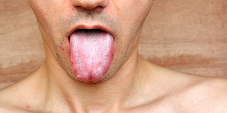 Photo of a man showing his tongue infection
