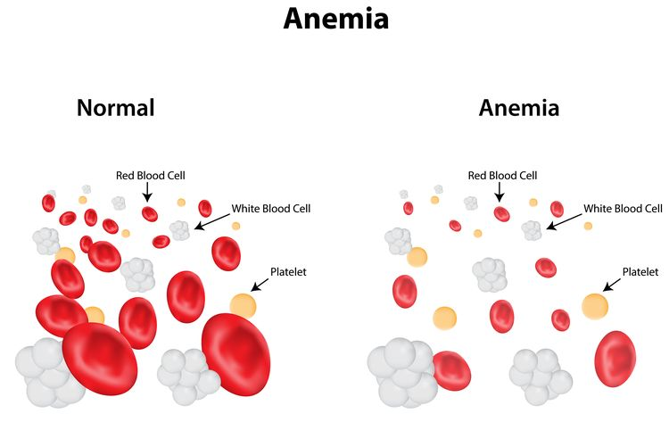 Illustration of anemic red blood cells