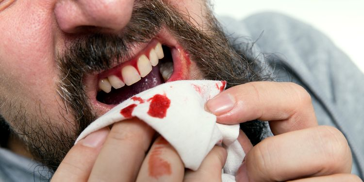 Photo of a man with bleeding teeth gums