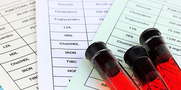Photo of blood test tubes
