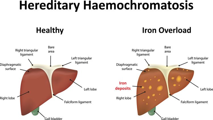 Illustration of a liver with haemochromatosis