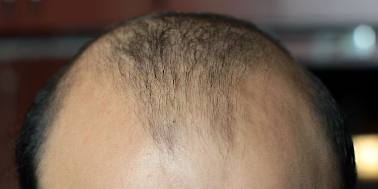 Photo of a balding man