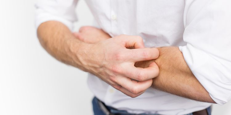 Photo of a man scratching arm