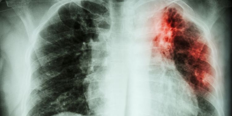 X-Ray photo of Lung Infection