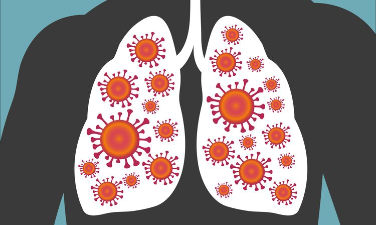 Illustration of lung infection
