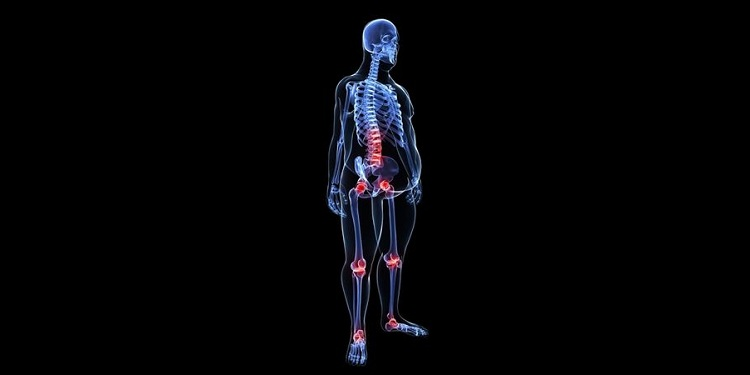 Illustration of joint inflammation in overweight person